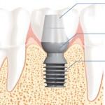 Dental Implant Taunton MA
