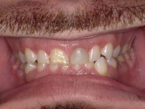 Before Dental Work Taunton MA