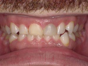 After Dental Work Taunton MA 2